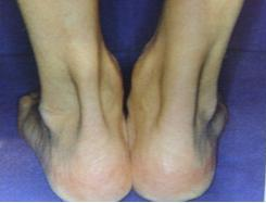 steroid injection ankle tendonitis