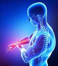 Arm Pain