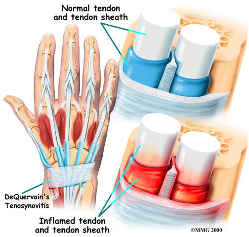 Thumb Tendinitis