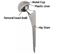 Total Hip Replacement Implant Components