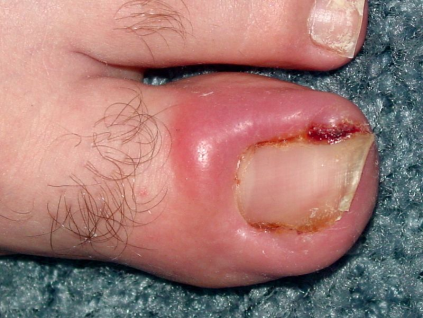 Ingrown toenails caused by overpronation