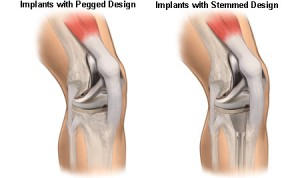 Implants with Pegged and Stemmed Design