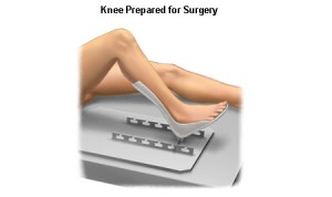 Preparing the knee for surgery