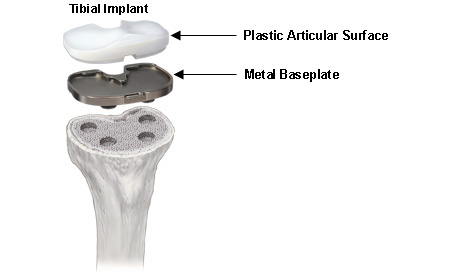 Tibial Implant consists of two parts