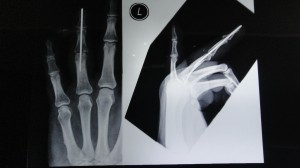 Mallet Finger Xray