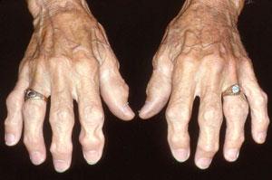 Osteoarthritis Fingers