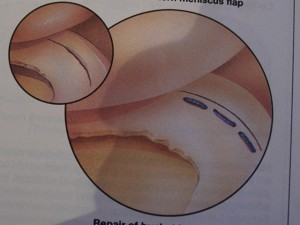Repair of the Meniscus