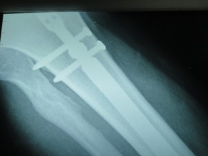 Tibia Fracture Fixed with IM Nail