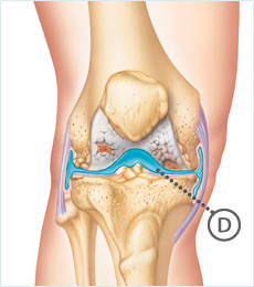 Knee Osteoarthritis Synvisc Treatment