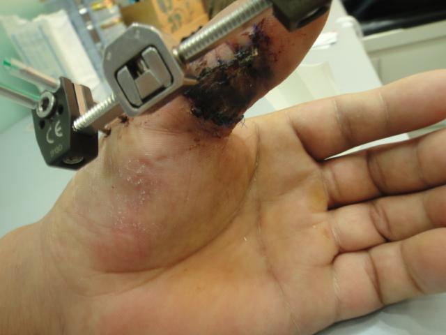 Thumb Fracture External Fixator