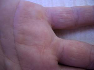 Trigger Finger Wound