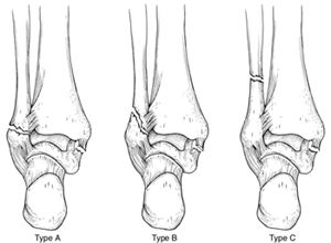 Different Ankle Fracture