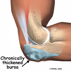 Elbow Bursitis Symptom