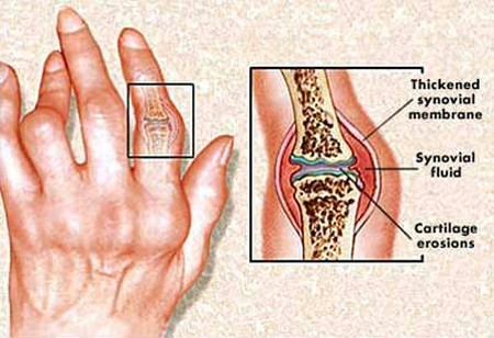 Rheumatoid Arthritis to the Fingers