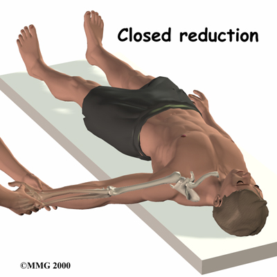 Closed Reduction to the Dislocated Shoulder