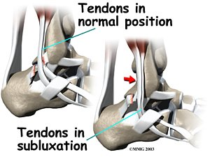 Ankle Peroneal Subluxation