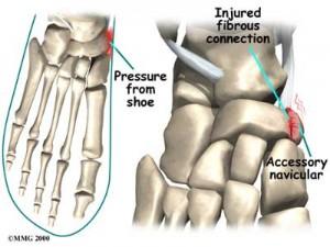 Ankle Navicular Pressue