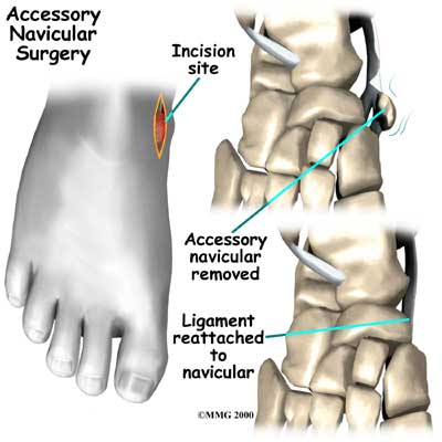 Ankle Navicular Surgery