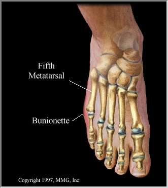 steroid injection ankle arthritis