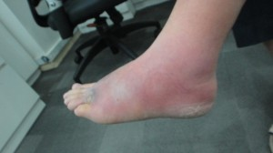 Cellulitis Foot
