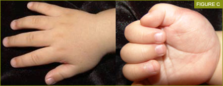 Congenital Polydactyly Treatment