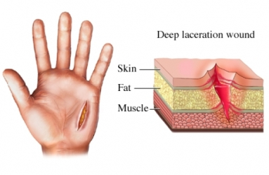 Wound Laceration