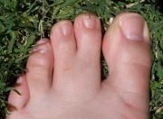 Syndactyly Foot