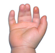 Syndactyly Hand