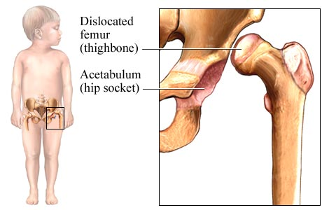 Dislocated Hip