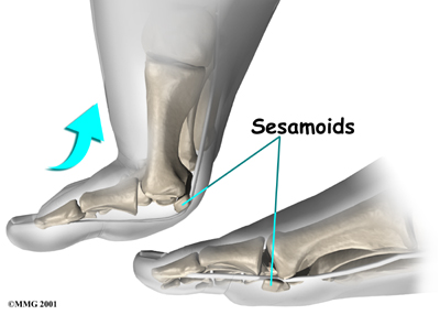 Foot Sesamoiditis