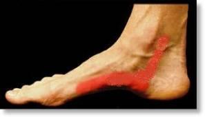 Posterior Tibial Tendon Pain