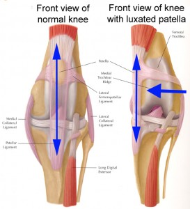 knee-subluxation