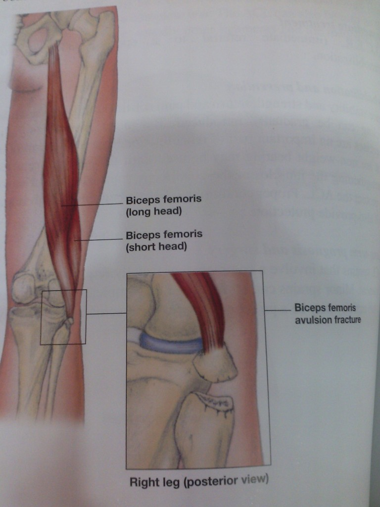 Biceps Femoris Avulsion Fracture