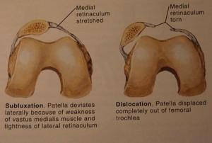 Kneecap Dislocation