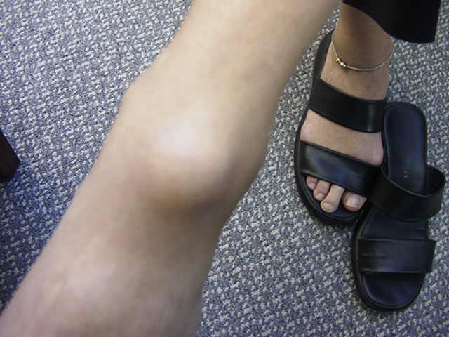 Ganglion Cyst Foot