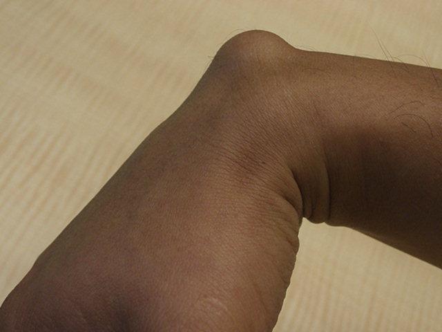 Ganglion Cyst Wrist