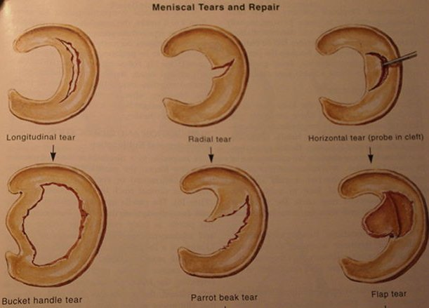 Meniscus Tear Type