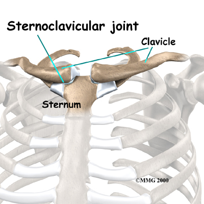 Sternoclavicular Separation | Singapore Sports ...