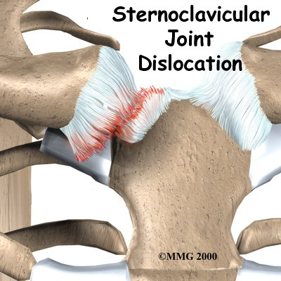 Sternoclavicular Separation