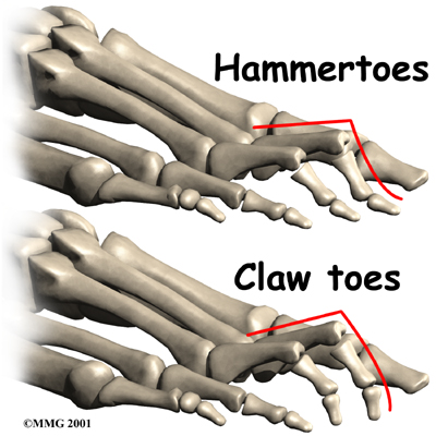 Claw Foot
