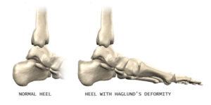 Haglund's Deformity