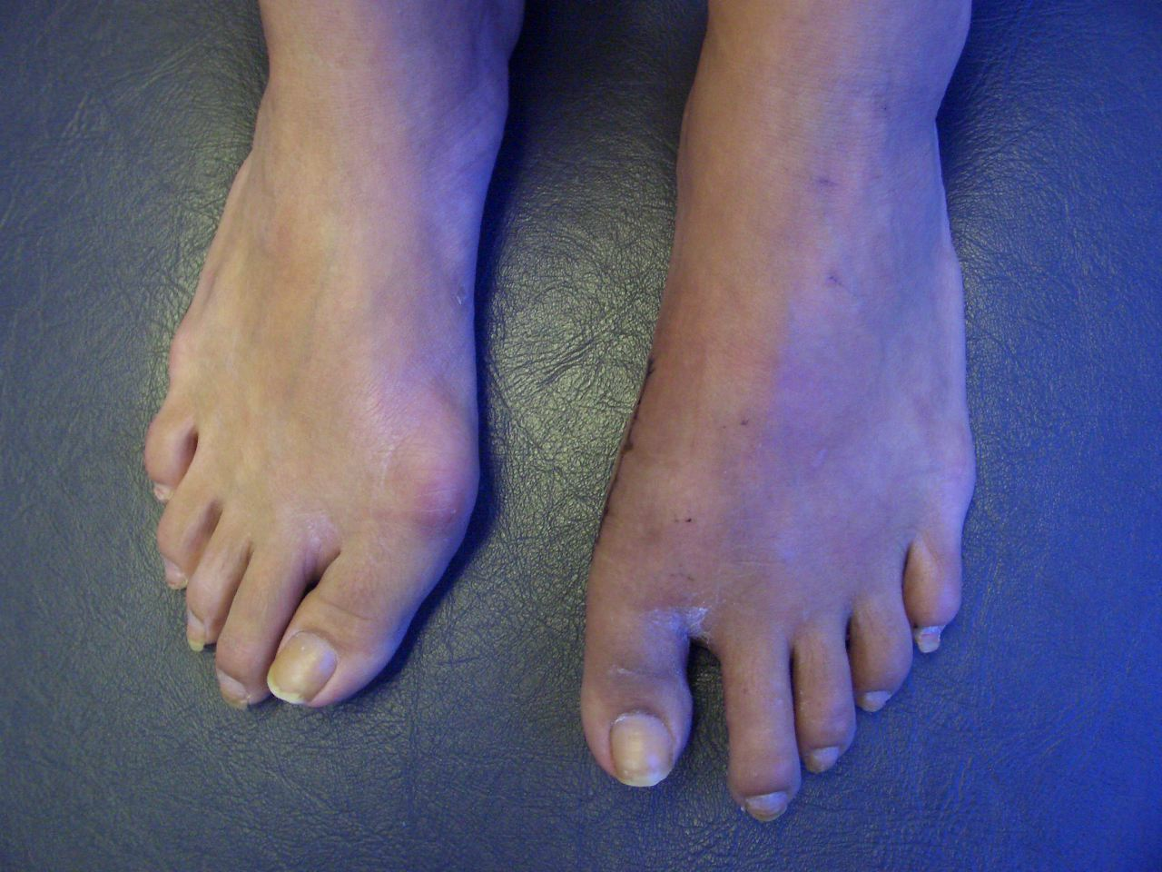 Before and After Bunion Corrective Surgery