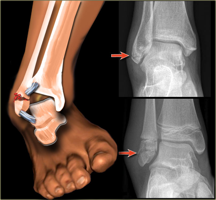 steroid injection in foot