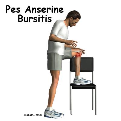 Knee Bursitis Pes Anserin